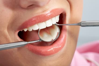 Know More About Metal-Free Fillings in Spokane, WA