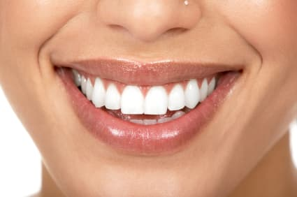 Benefits to Improving Your Teeth with Non-Metal Implants in Spokane